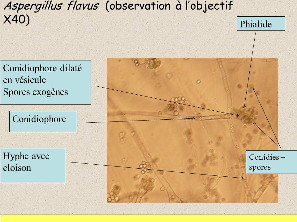 Aspergillus flavus (observation à l'objectif X40)