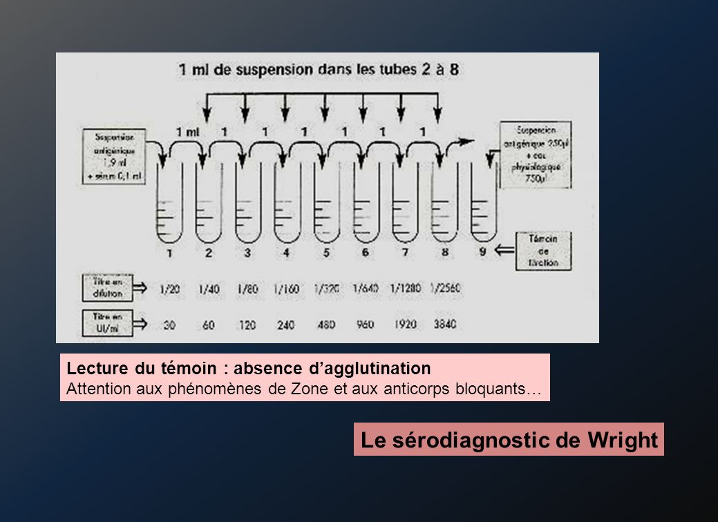 Le sérodiagnostic de Wright