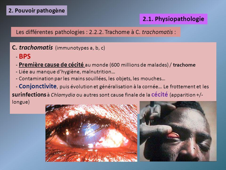 Les différentes pathologies : 2.2.2. Trachome à C. trachomatis :