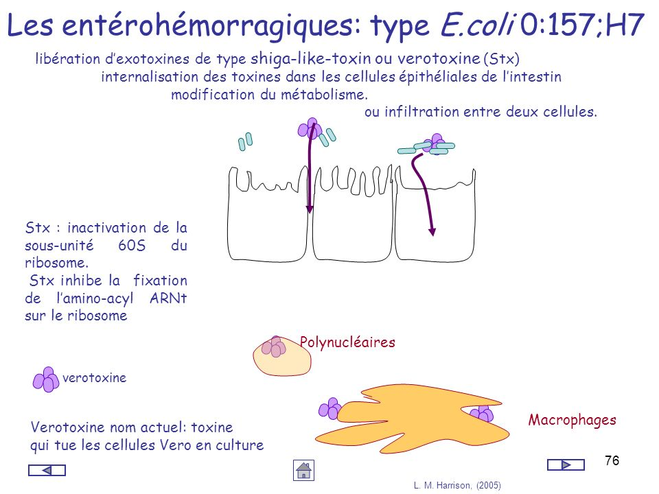 Les entérohémorragiques: type E.coli 0:157;H7