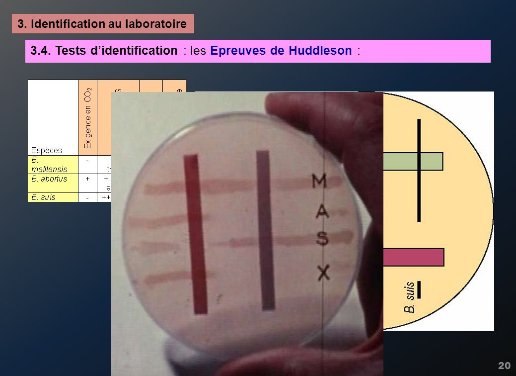 3.4. Tests d'identification : les Epreuves de Huddleson :