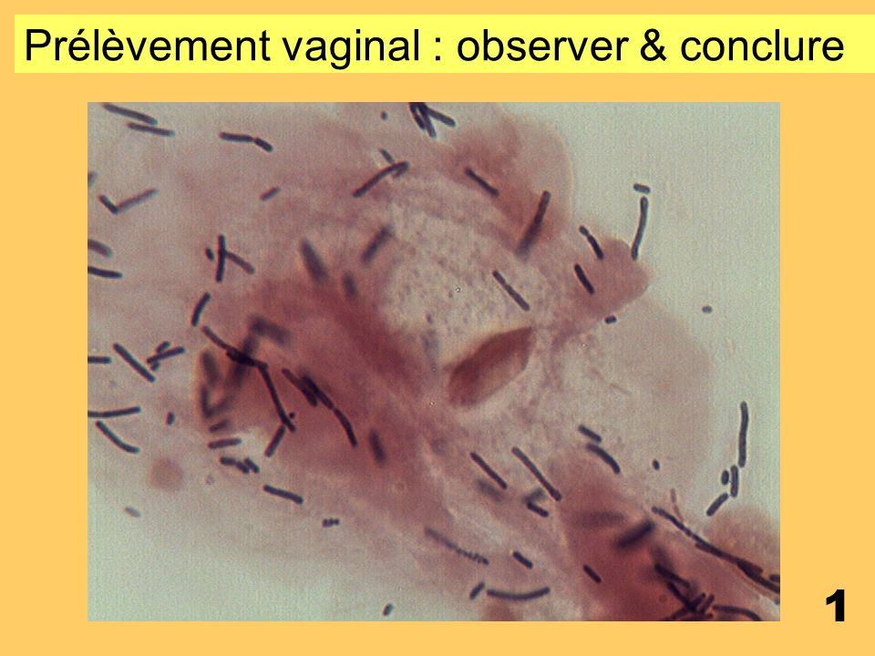 Prélèvement vaginal : observer & conclure