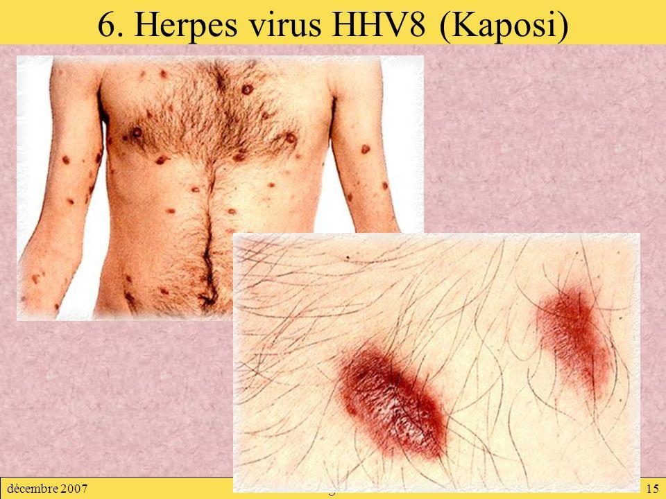 6. Herpes virus HHV8 (Kaposi)