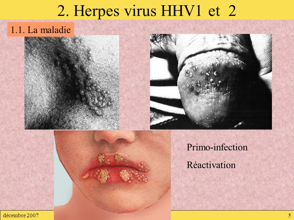 2. Herpes virus HHV1 et 2 1.1. La maladie Primo-infection Réactivation