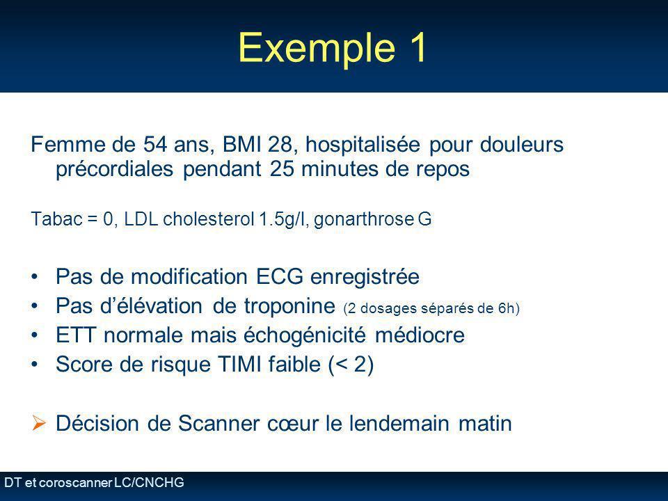 Exemple 1 Femme de 54 ans, BMI 28, hospitalisée pour douleurs précordiales pendant 25 minutes de repos.