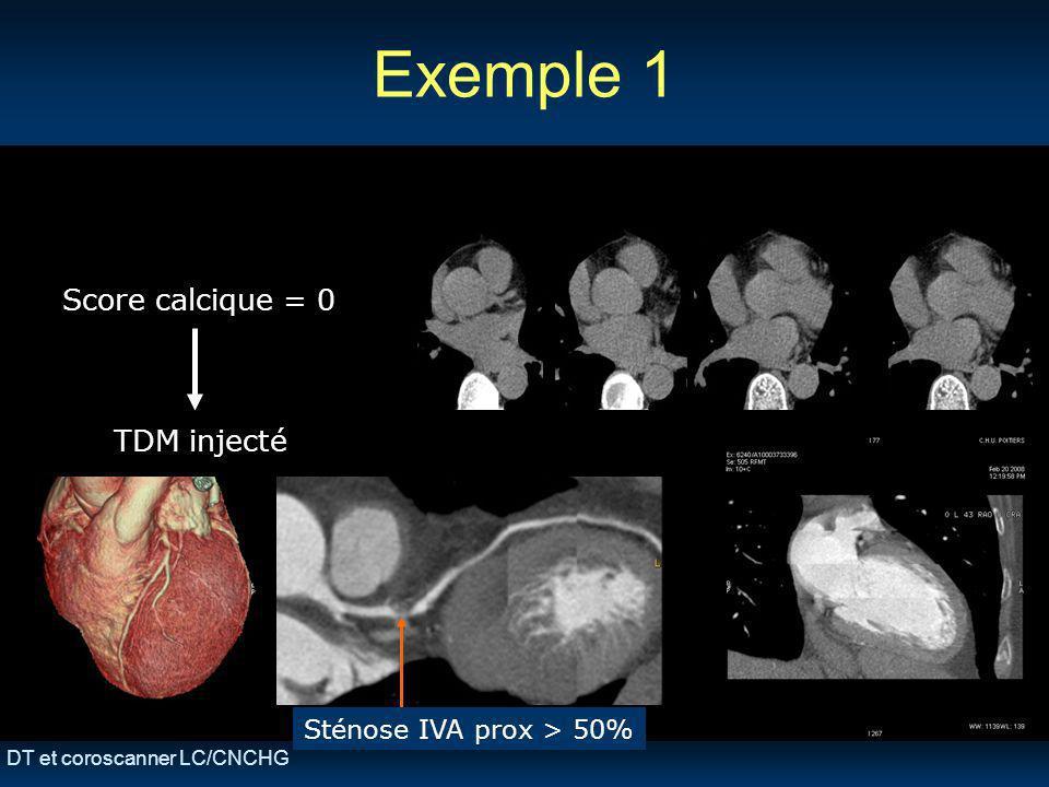 Exemple 1 Score calcique = 0 TDM injecté Sténose IVA prox > 50%