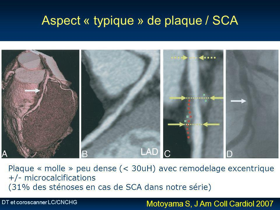 Aspect « typique » de plaque / SCA