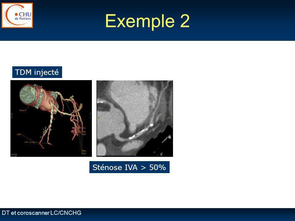 Exemple 2 TDM injecté Sténose IVA > 50% DT et coroscanner LC/CNCHG