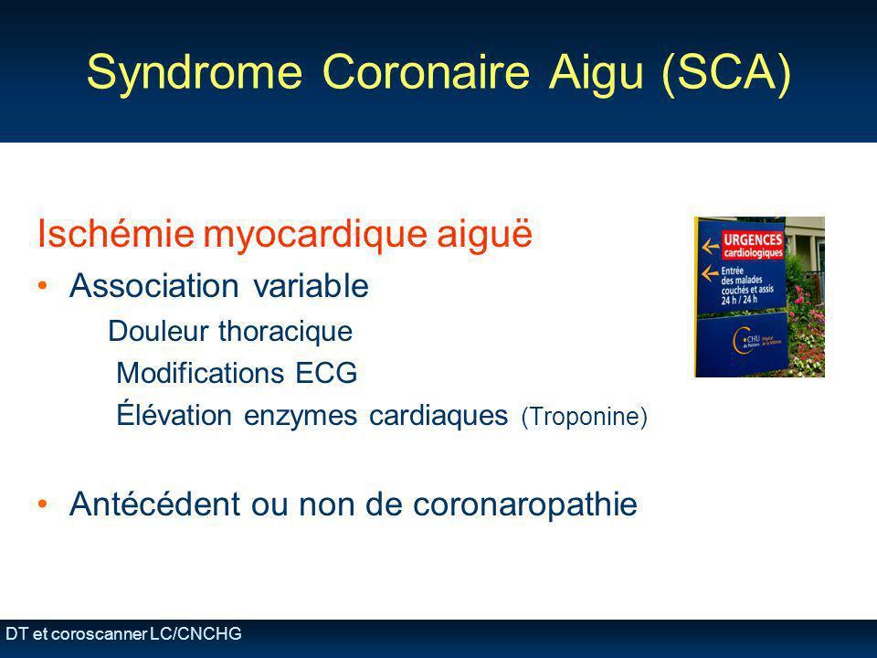 Syndrome Coronaire Aigu (SCA)