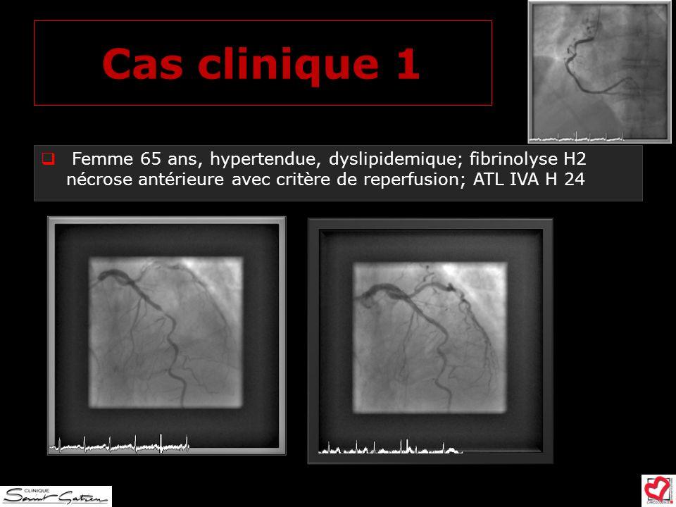 Cas clinique 1 Femme 65 ans, hypertendue, dyslipidemique; fibrinolyse H2 nécrose antérieure avec critère de reperfusion; ATL IVA H 24.