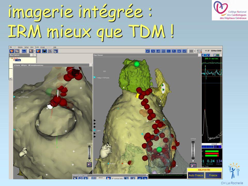 imagerie intégrée : IRM mieux que TDM !
