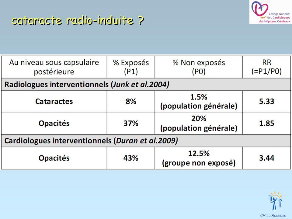 cataracte radio-induite