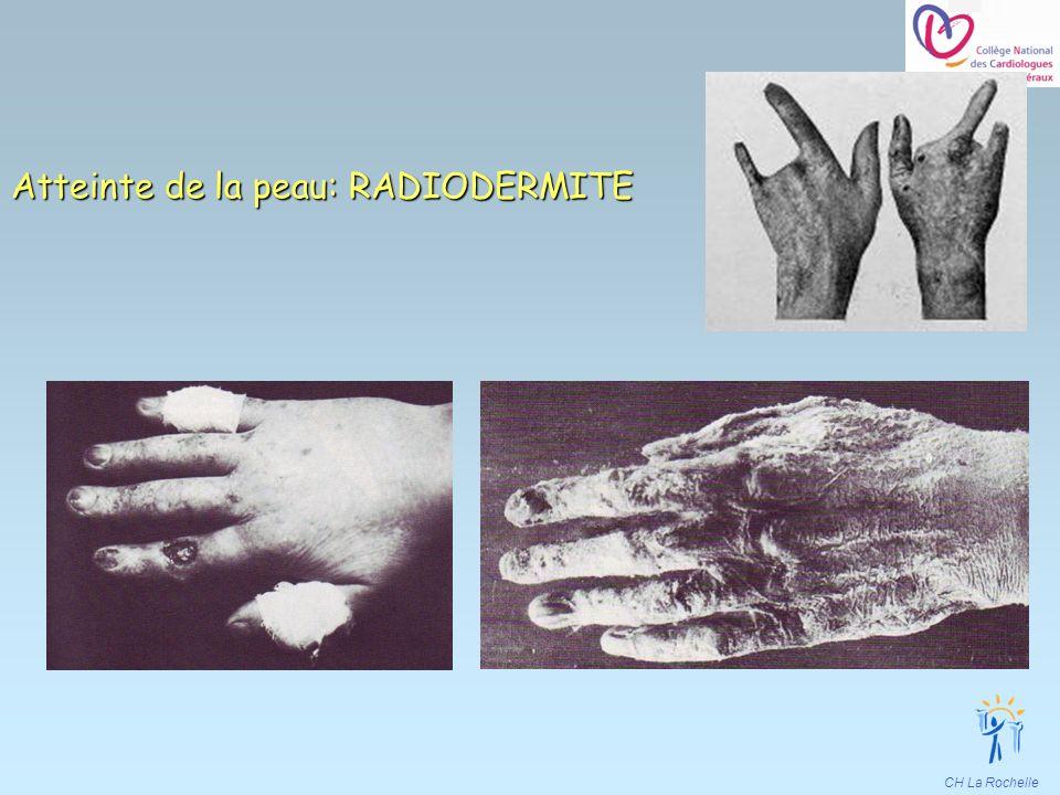 Atteinte de la peau: RADIODERMITE