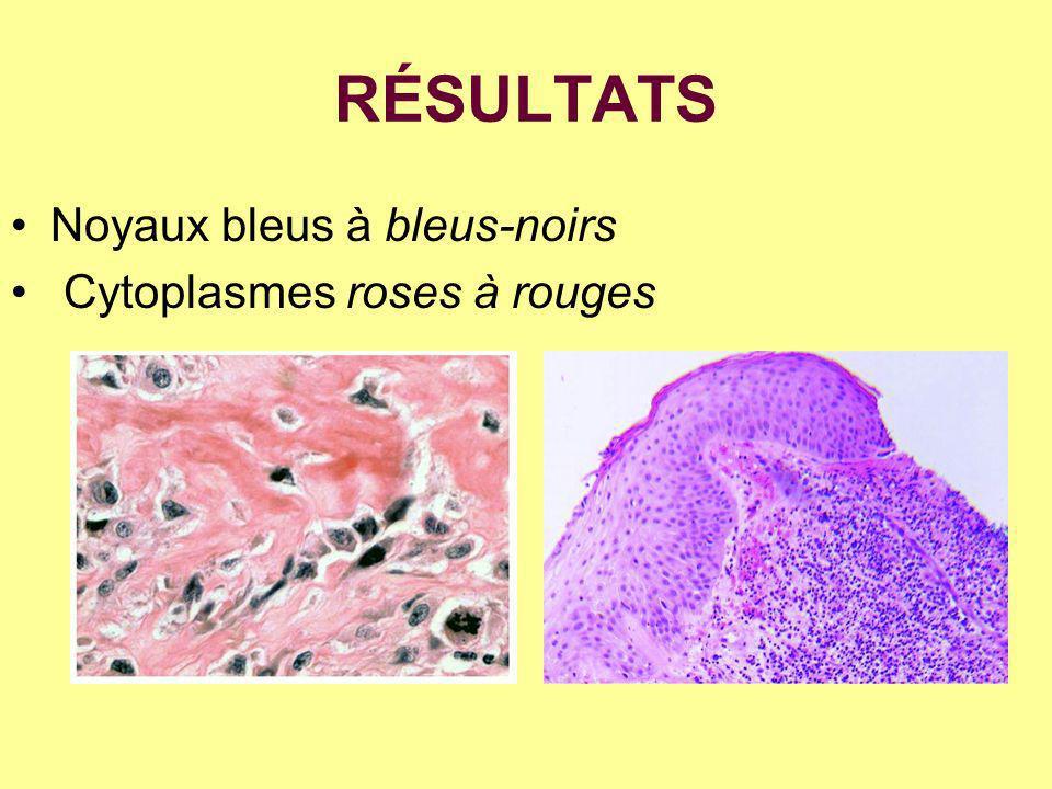 RÉSULTATS Noyaux bleus à bleus-noirs Cytoplasmes roses à rouges