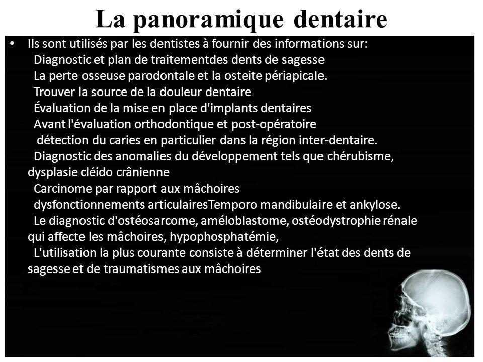 La panoramique dentaire