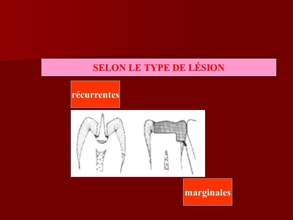 SELON LE TYPE DE LÉSION récurrentes marginales