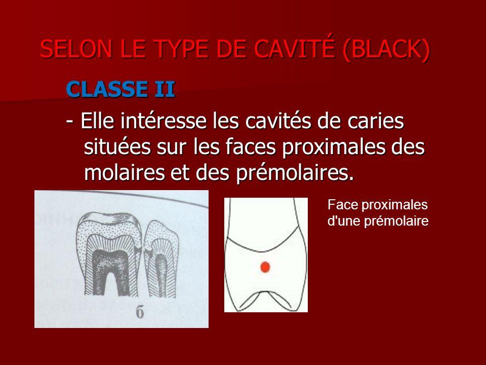 SELON LE TYPE DE CAVITÉ (BLACK)