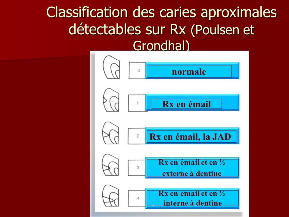 Classification des caries aproximales détectables sur Rx (Poulsen et Grondhal)