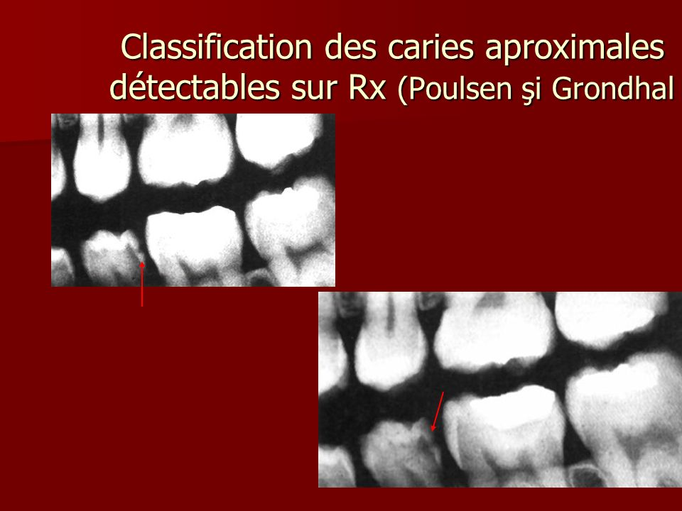 Classification des caries aproximales détectables sur Rx (Poulsen şi Grondhal