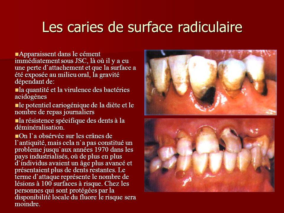 Les caries de surface radiculaire