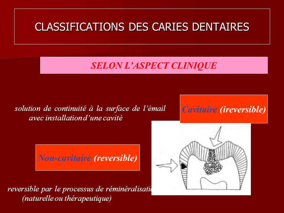 CLASSIFICATIONS DES CARIES DENTAIRES
