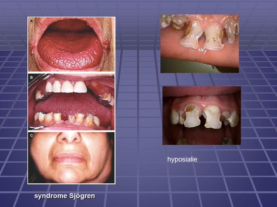 hyposialie syndrome Sjögren