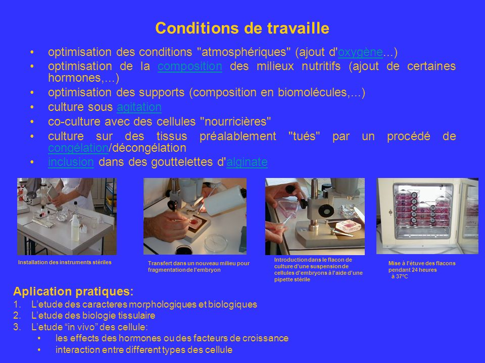 Conditions de travaille