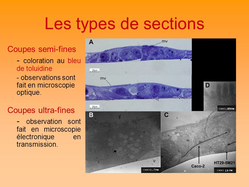 Les types de sections Coupes semi-fines
