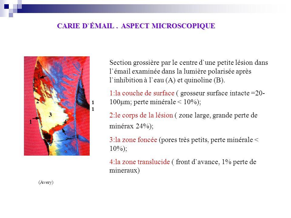 CARIE D`ÉMAIL . ASPECT MICROSCOPIQUE