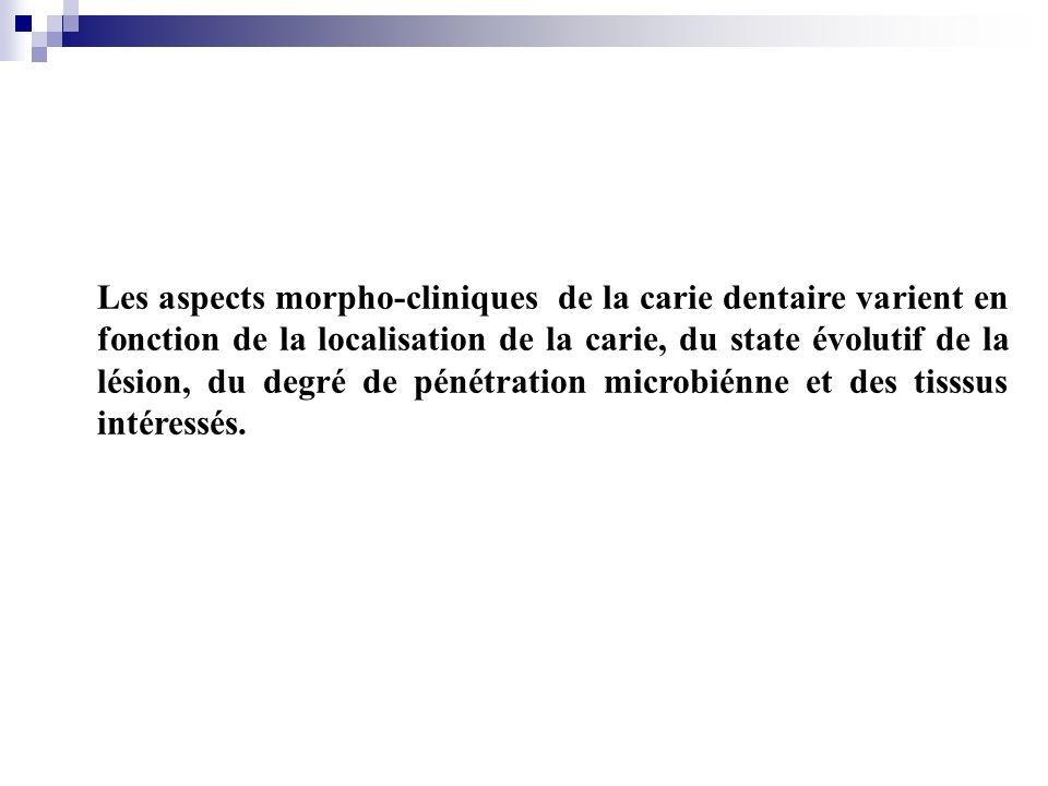 Les aspects morpho-cliniques de la carie dentaire varient en fonction de la localisation de la carie, du state évolutif de la lésion, du degré de pénétration microbiénne et des tisssus intéressés.