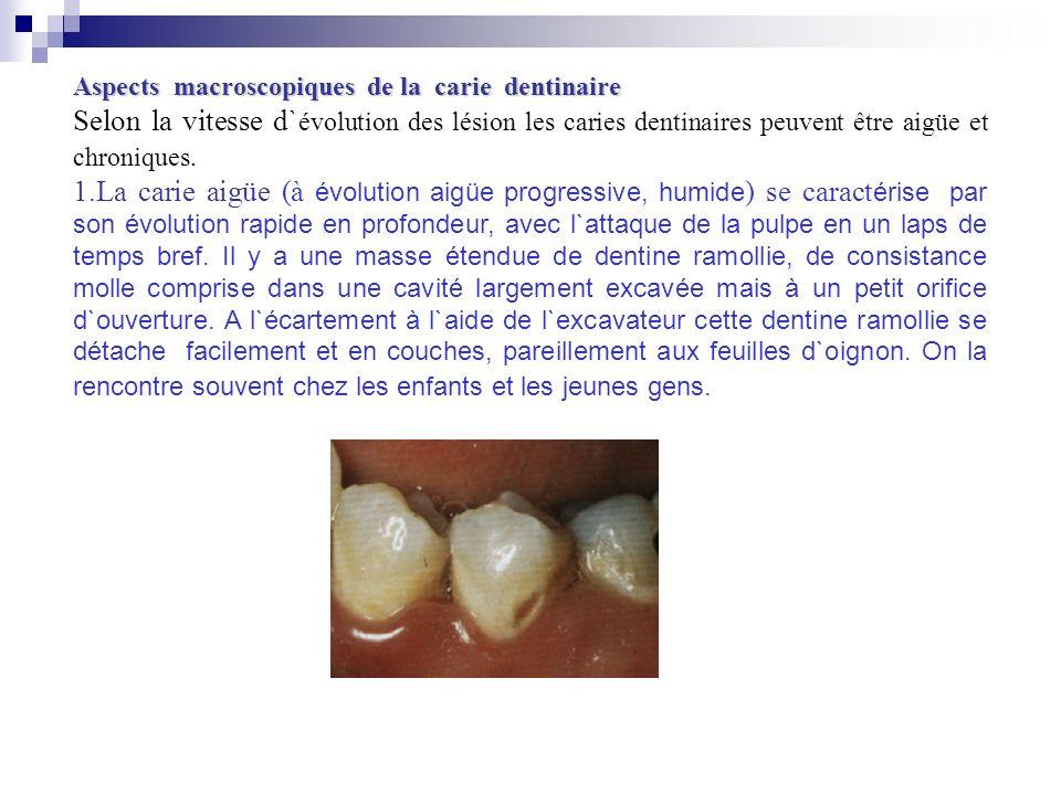 Aspects macroscopiques de la carie dentinaire