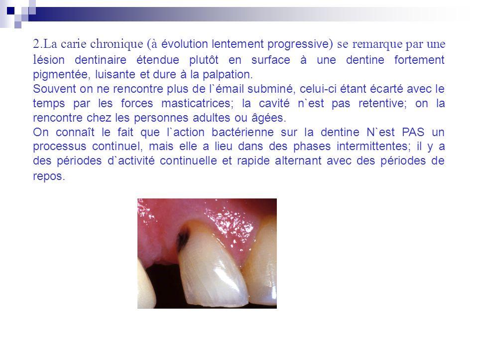 2.La carie chronique (à évolution lentement progressive) se remarque par une lésion dentinaire étendue plutôt en surface à une dentine fortement pigmentée, luisante et dure à la palpation.