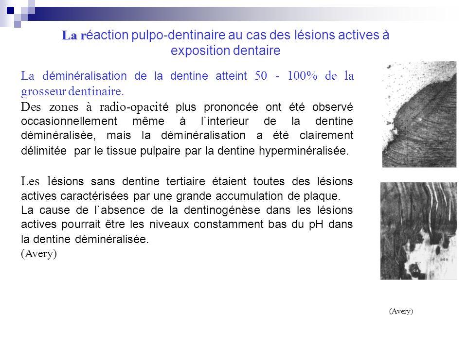 La réaction pulpo-dentinaire au cas des lésions actives à exposition dentaire