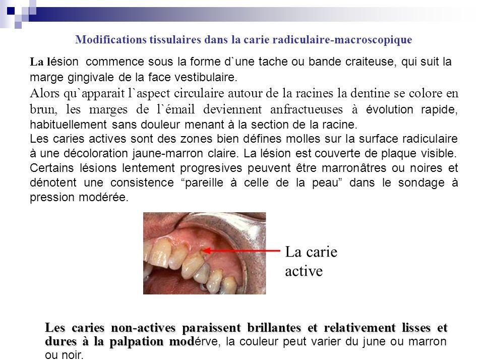 Modifications tissulaires dans la carie radiculaire-macroscopique