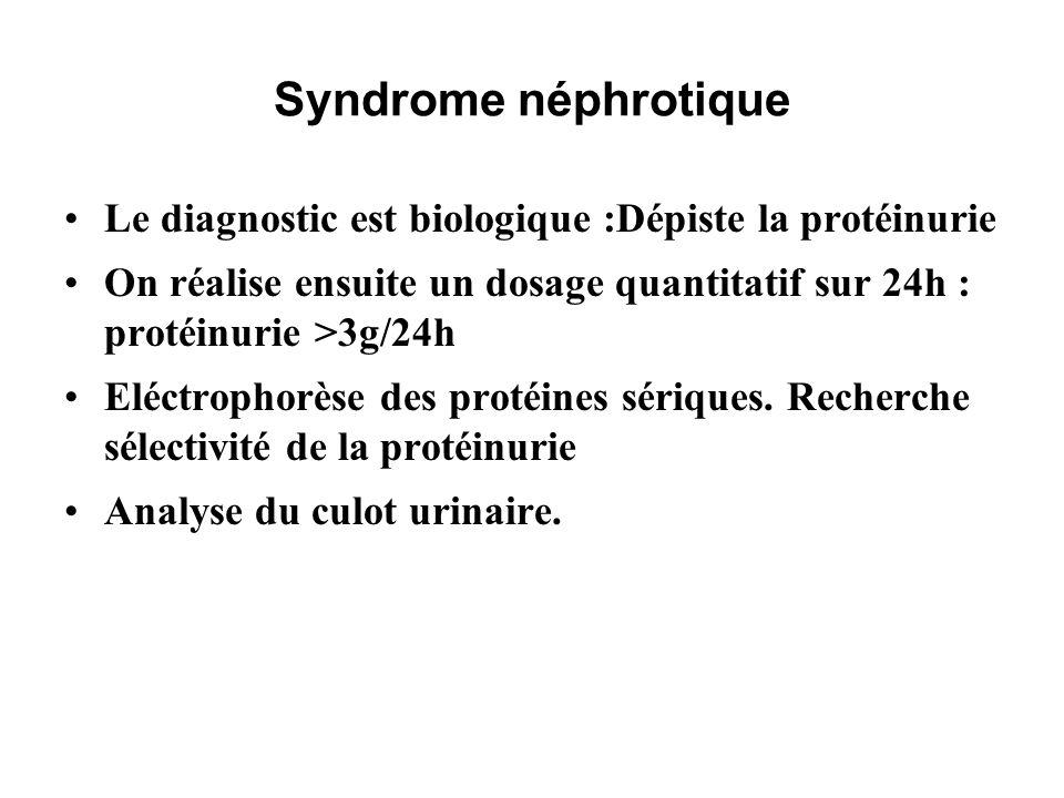 Syndrome néphrotique Le diagnostic est biologique :Dépiste la protéinurie. On réalise ensuite un dosage quantitatif sur 24h : protéinurie >3g/24h.