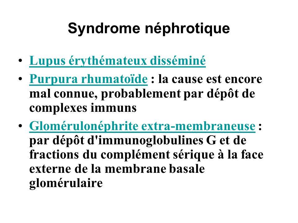 Syndrome néphrotique Lupus érythémateux disséminé