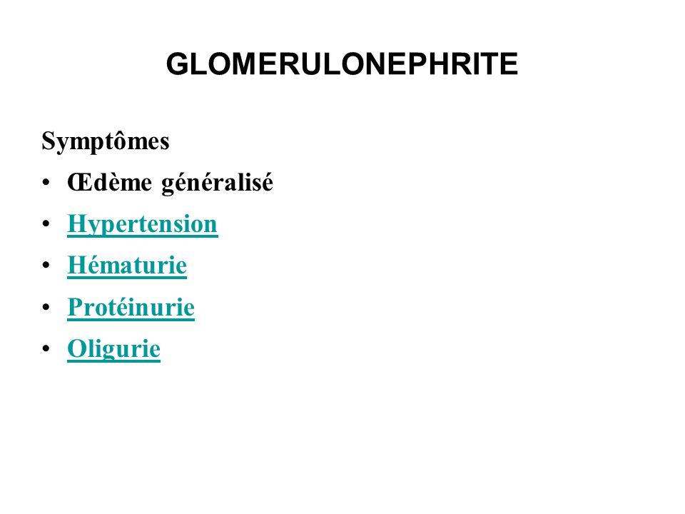 GLOMERULONEPHRITE Symptômes Œdème généralisé Hypertension Hématurie