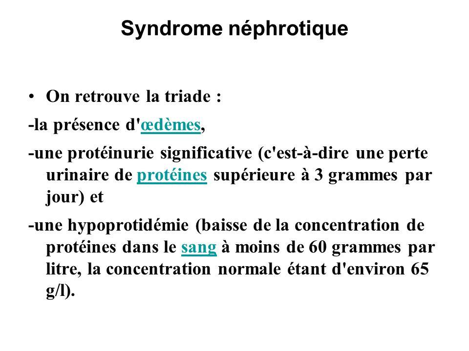 Syndrome néphrotique On retrouve la triade : -la présence d œdèmes,
