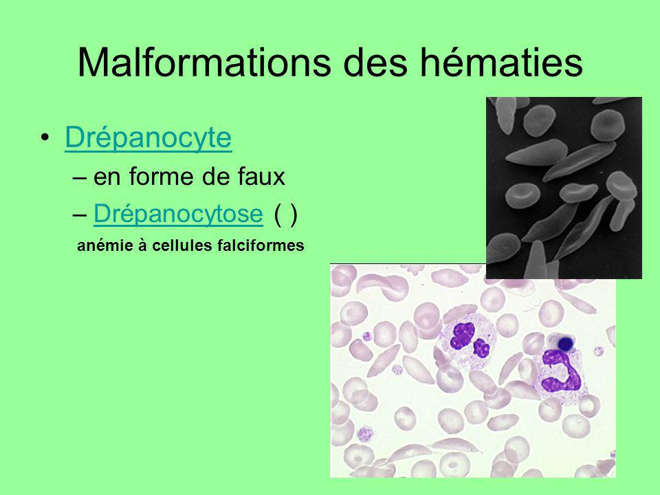 Malformations des hématies