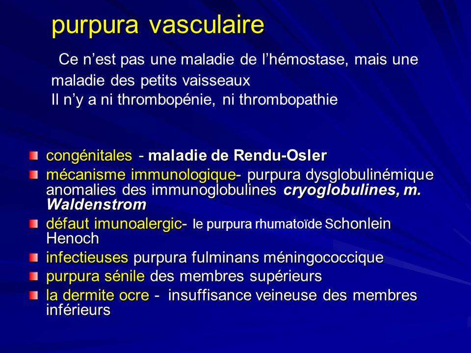 purpura vasculaire Ce n'est pas une maladie de l'hémostase, mais une maladie des petits vaisseaux Il n'y a ni thrombopénie, ni thrombopathie