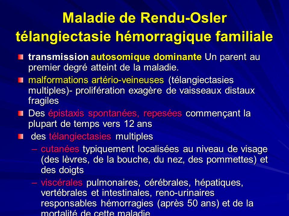 Maladie de Rendu-Osler télangiectasie hémorragique familiale