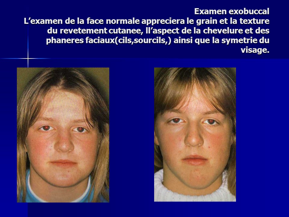 Examen exobuccal L'examen de la face normale appreciera le grain et la texture du revetement cutanee, ll'aspect de la chevelure et des phaneres faciaux(cils,sourcils,) ainsi que la symetrie du visage.