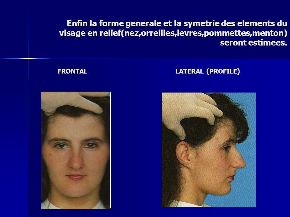 Enfin la forme generale et la symetrie des elements du visage en relief(nez,orreilles,levres,pommettes,menton) seront estimees.