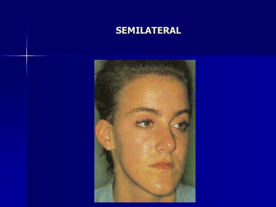 SEMILATERAL