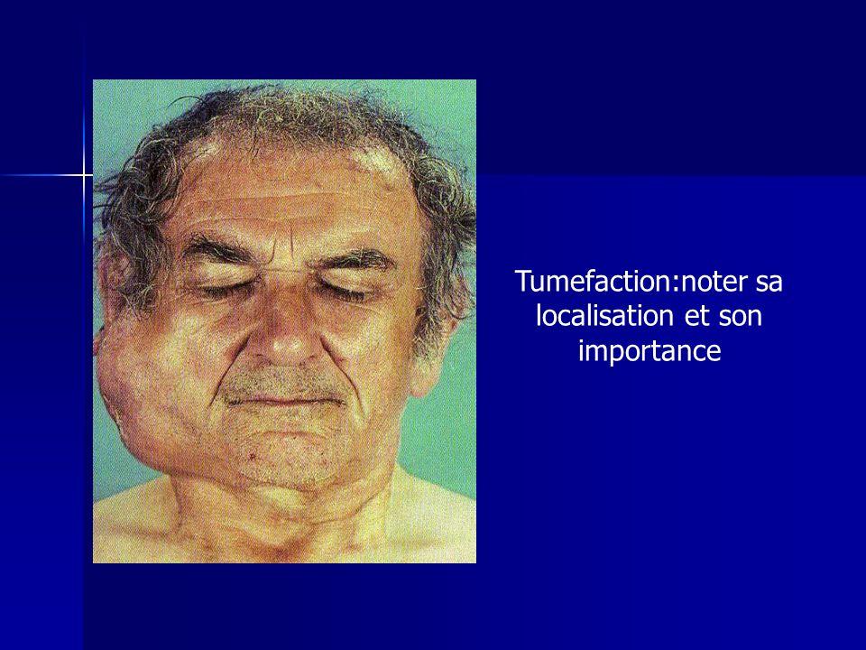 Tumefaction:noter sa localisation et son importance