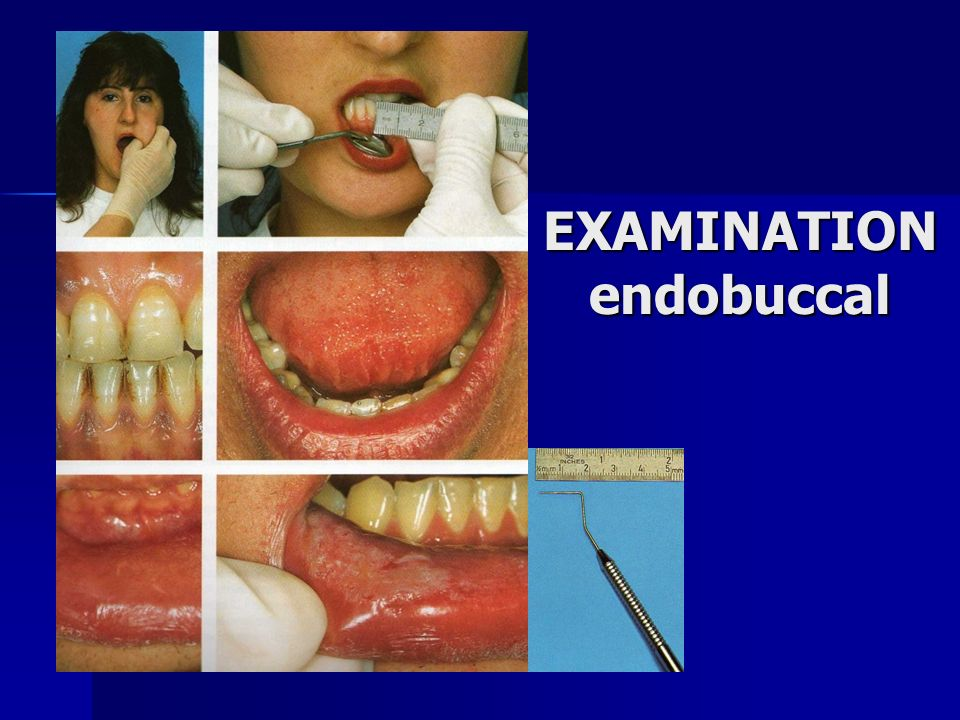 EXAMINATION endobuccal