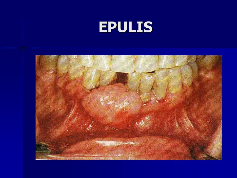 EPULIS