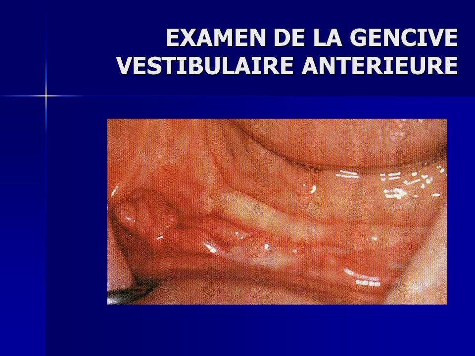 Examen de la gencive vestibulaire anterieure