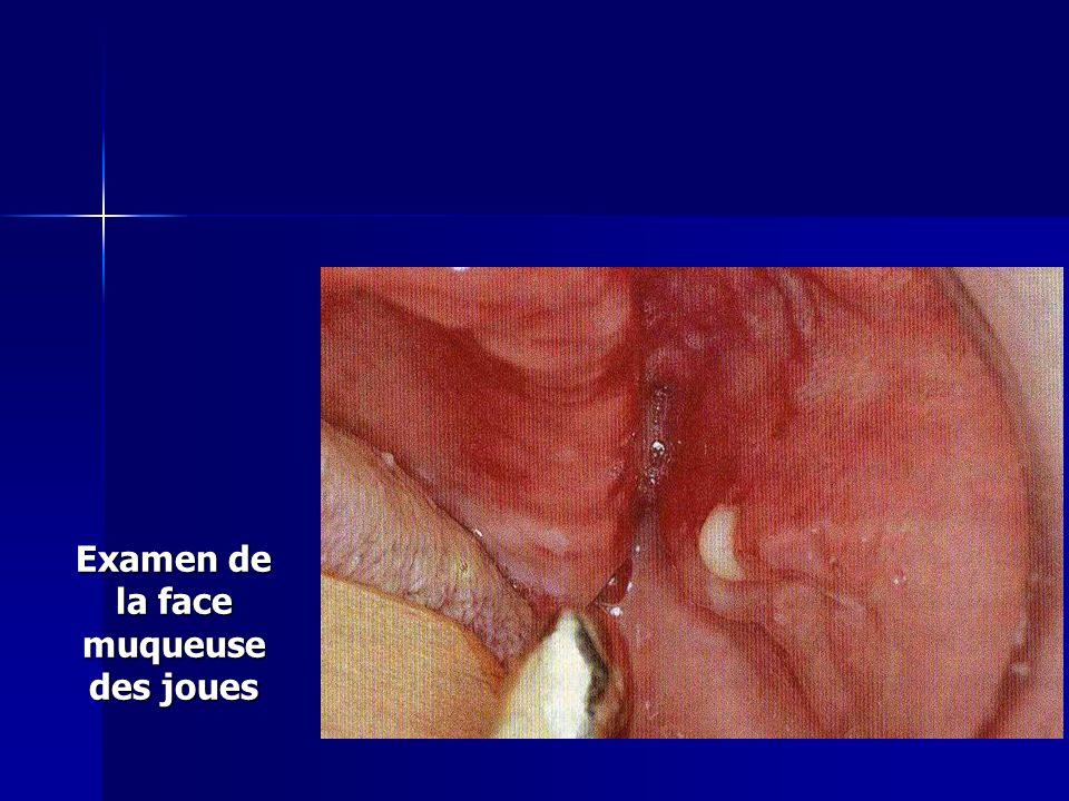 Examen de la face muqueuse des joues