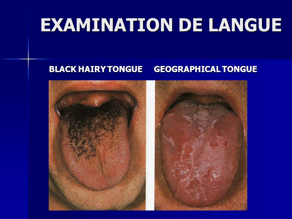 EXAMINATION DE LANGUE BLACK HAIRY TONGUE GEOGRAPHICAL TONGUE